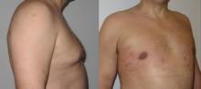 Ginekomastia - zabieg odsysania tłuszczu- zdjęcia przed i kilka dni po operacji