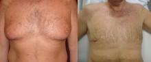 Ginekomastia - przerost gruczołu - redukcja piersi - zdjęcia przed i po operacji