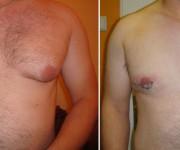 Ginekomastia - przerost gruczołu - redukcja piersi - zdjęcia przed i kilka dni po operacji