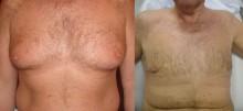 Operacja zmniejszania męskich gruczołów piersiowych - zdjęcia przed i pooperacyjne