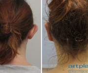 Zdjęcia przed i po zabiegu korekcji odstających uszu