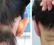 Zdjęcia przed i po zabiegu korekcji odstających uszu - 14 dni po operacji