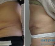 Plastyka powłok brzusznych - zdjęcie przed i 2 miesiące po operacji