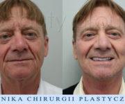 Augusto Moschini - lifting twarzy i szyi