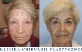 Beauty Group - Artplastica - lifting twarzy oraz plastyka powiek górnych. Zdjęcie przed i po operacji.
