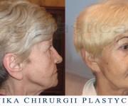 Beauty Group - Artplastica - lifting twarzy oraz plastyka powiek górnych i dolnych. Zdjęcie przed i po operacji.