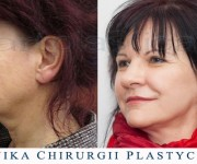 Beauty Group - Artplastica - lifting twarzy i szyi oraz plastyka powiek górnych. Zdjęcie przed i po operacji.