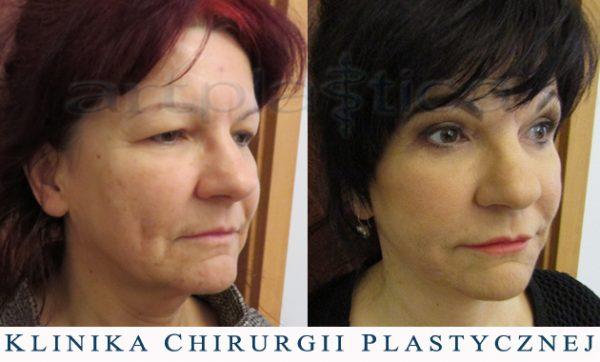 Beauty Group - Artplastica - lifting twarzy i szyi oraz plastyka powiek górnych. Zdjęcie przed i  1,5 roku po operacji
