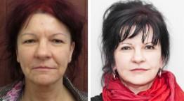 Lifting twarzy i szyi oraz plastyka powiek górnych. Zdjęcie przed i po operacji.