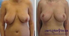 Podniesienie piersi - zdjęcie przed i po zabiegu