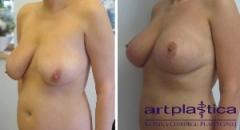 Plastyka piersi - efekt po operacji
