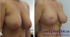 Efekt po wykonaniu zabiegu podniesienia piersi