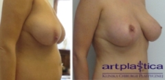 Efekt po zabiegu podniesienia piersi