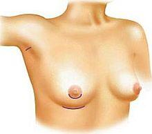 Rodzaje cięć chirurgicznych przy operacjach powiększenia biustu