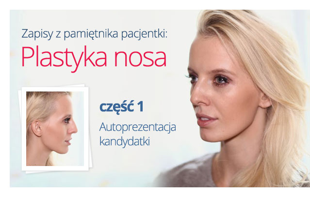 plastyka-nosa-prezentacja-kandydatki