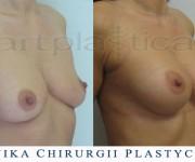 Operacja powiększenia biustu - zdjęcia przed i po zabiegu