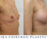 Powiększenie biustu - zdjęcia przed i po zabiegu