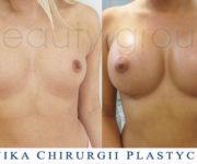 Klinika Chirurgii Plastycznej - Beauty Group - powiększanie biustu - zdjęcia przed i po zabiegu