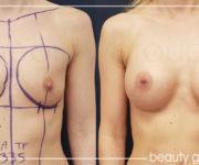 Operacja powiększania biustu - zdjęcia przed i po zabiegu