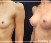 Powiększanie biustu - zdjęcia przed i po operacji