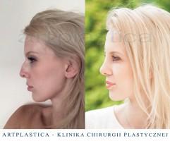 Metamorfoza Kingi - zdjęcie przed i po operacji plastycznej korekcji nosa
