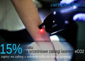 Laser Co2 - rabaty w Artplastica