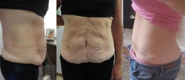 Kristina - operacja plastyczna brzucha - zdjęcia przed i po zabiegu