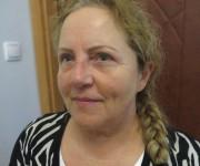 Zdjęcie Ewy po operacji powiek górnych