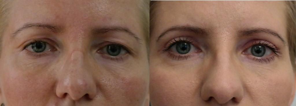 Korekta powiek przed i po - Artplastica