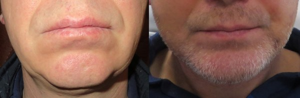 BG Artplastica_implant bródki_przed i po