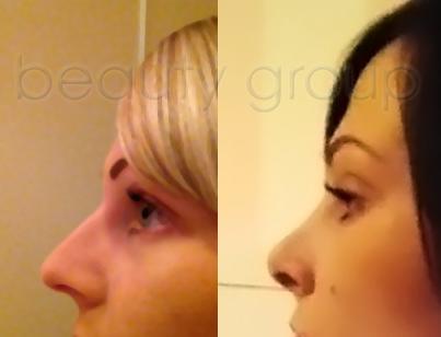 Efekt zabiegu korekcji nosa - zdjęcie przed i po operacji