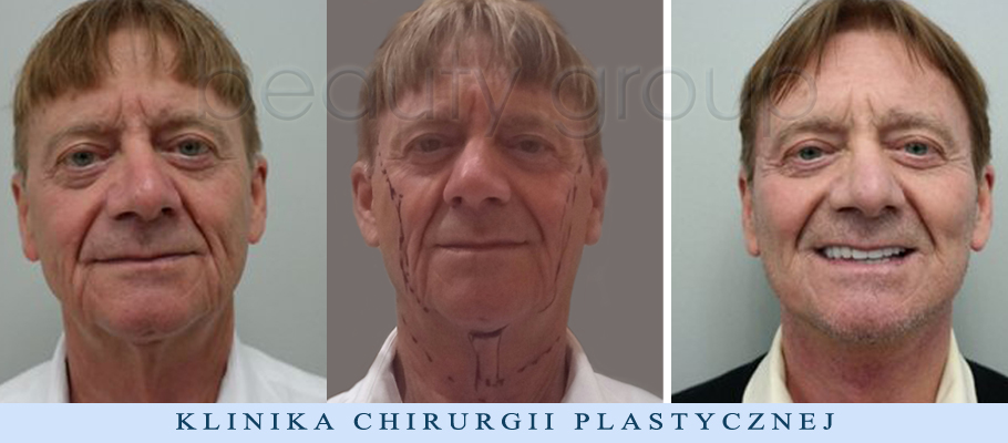 Augusto Moschini – lifting twarzy i szyi