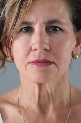 Szkolenie Allergan - zabieg z użyciem kwasu hialuronowego - przed zabiegiem