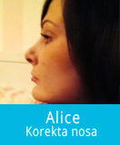 Alice-slider